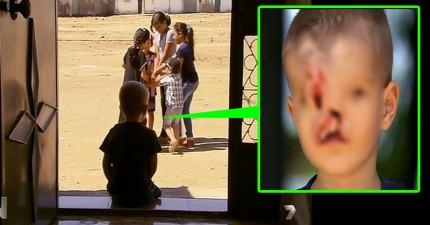 這名男童嚴重畸形的臉讓他把玩伴都嚇跑了,但經過18小時超高難度手術後...!