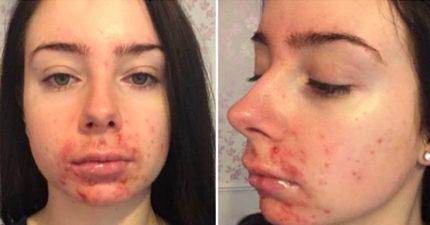 她滿臉痘痘遭男友嫌棄 半年治療後皮膚好到男友後悔!
