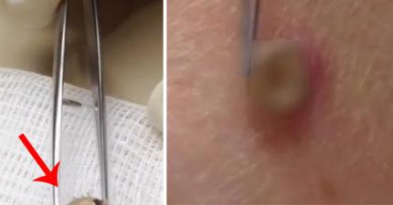 以為長痘痘...皮膚下腫一大包拔出「活的還會動」!醫師:4到9月要小心