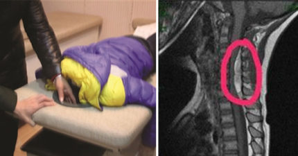 按摩愛好者小心!5歲童脖子痛去按摩 1小時後竟「終身癱瘓」
