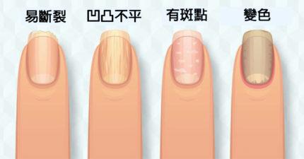 8種指甲狀況檢視身體健康 指甲變黃、出現黑線要注意!