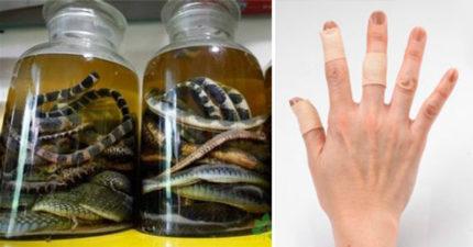 堅持買毒蛇做藥酒!女被咬「用OK繃包紮」 7天後醫院:請節哀