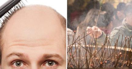 禿頭有救了!毛囊會「選擇氣味」長頭髮 英研究:檀香味最有用