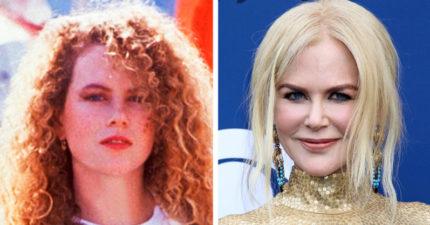 15個名人的「天生頭髮」曝光 艾瑪史東才不是紅髮正妹!