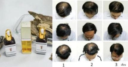 泰科學家研發「禿頭終極解藥」 1個月效果明顯「專利被搶爆」